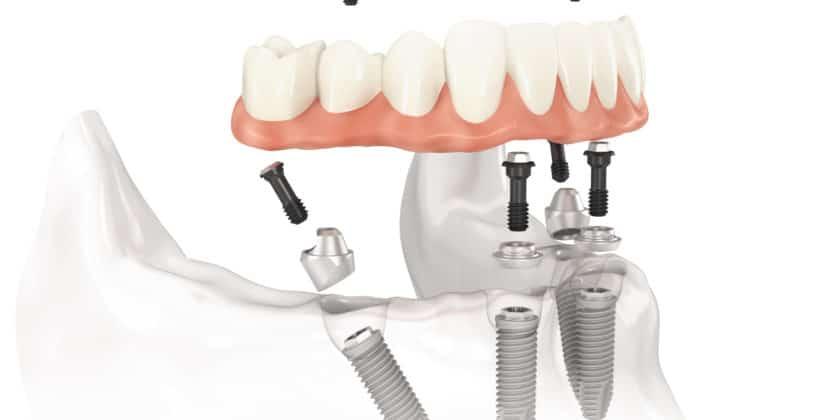 Dental Implants Auckland