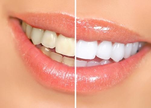 Teeth Whitening Gallery