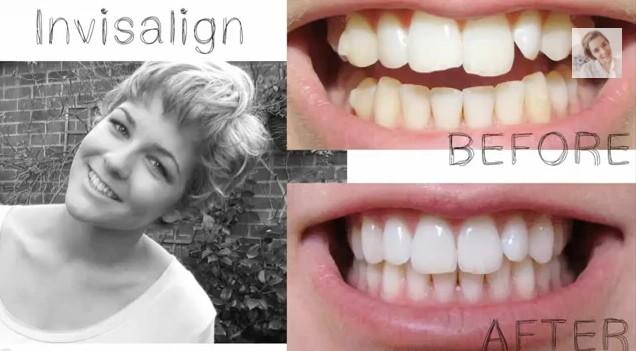 Teeth Straightening Auckland