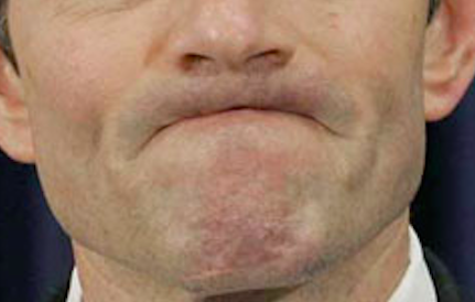 bad breath tips Auckland dentist