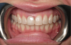 Zoom Teeth Whitening Auckland Dentists