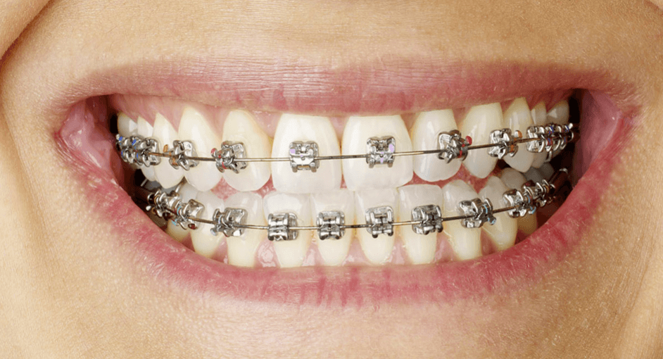 traditional braces auckland dentists