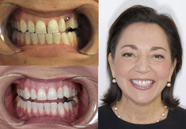 Dental Implants Auckland Dentists