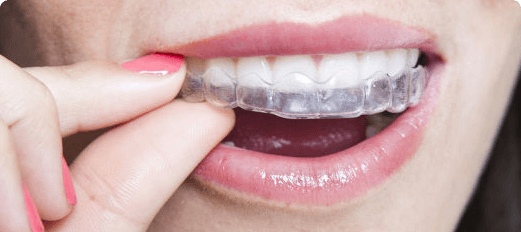 Why Invisalign?