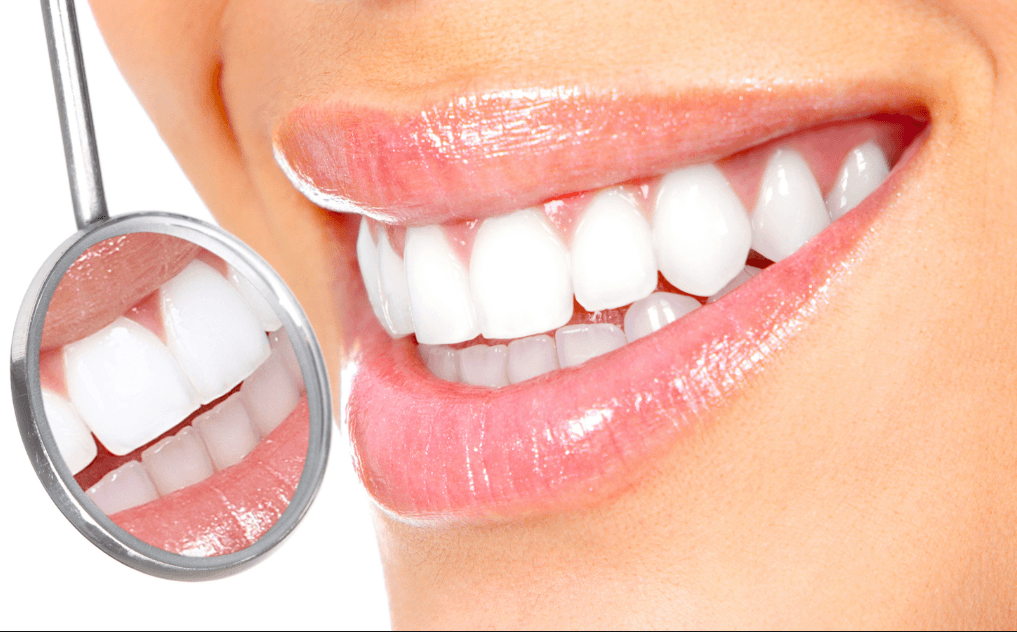 Teeth Whitening Auckland Dentists