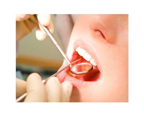 Gentle Dentist Auckland