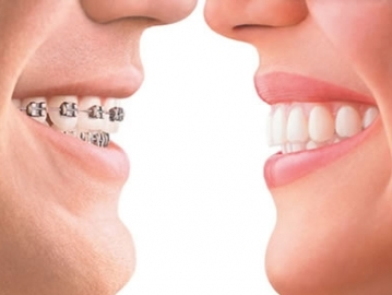 Teeth Alignment or Teeth Straightening: Best Option from the Experts