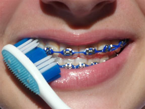 Tips on How to Brush Your Teeth with Braces