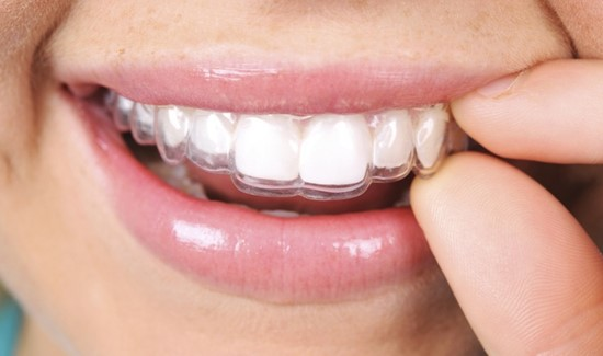 Is Invisalign Worth the Cent?