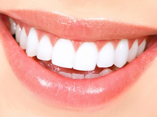 Basic of Teeth Whitening