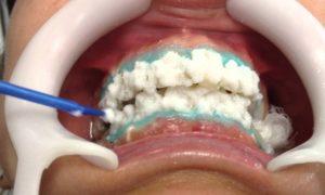 Teeth Whitening Activation