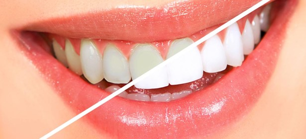 Facts to Remember About Teeth Whitening