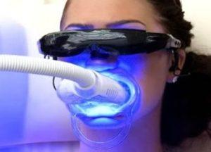Teeth Whitening Final