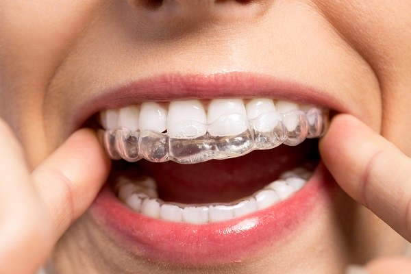 What can Invisalign do?